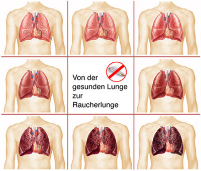 Magenschmerzen nach Rauchstopp | Bauchschmerzen nach dem Rauchen aufhören