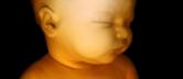 Ultraschallbilder-Schwangerschaft