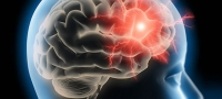 Endovaskuläre Technik revolutioniert Schlaganfall-Therapie