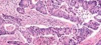 Welche Blutwerte sind bei Darmkrebs ausschlaggebend?