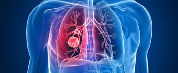 Faseroptikkabel in der Medizin