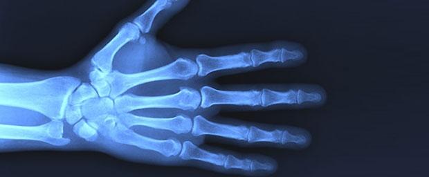 Aufbau menschlicher Knochen