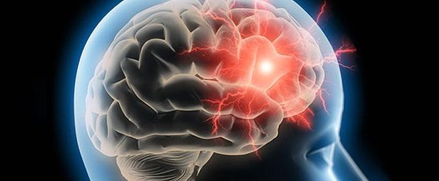 Kopfschmerzen-Typ