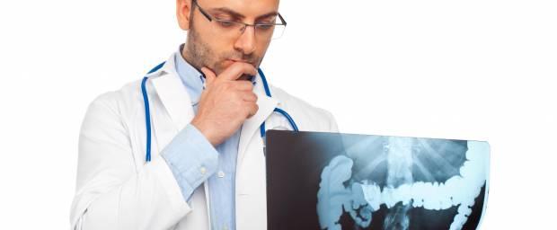 Welche Stadien werden beim Darmkrebs unterschieden?