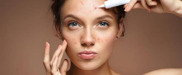 Junge Frauen mit Akne im Gesicht gibt Creme auf einen Pickel