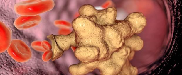 Amöbenruhr, Amöbiasis