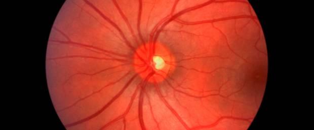 Angiographie am Auge