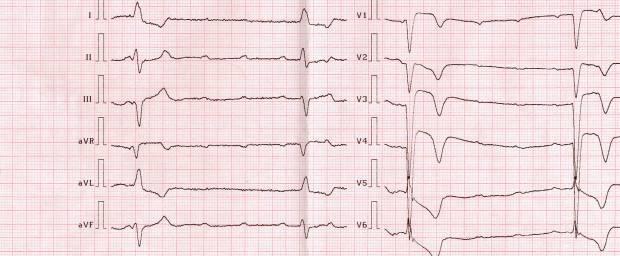 Elektrokardiogramm AV-Block