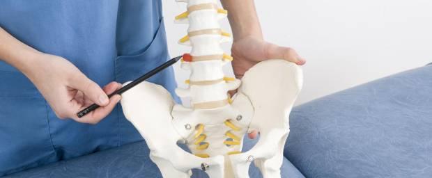 Ärztin zeigt auf einen Bandscheibenvorfall am Wirbelsäulenmodell