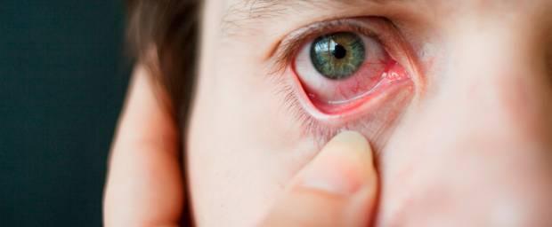 Bindehautentzündung am Auge