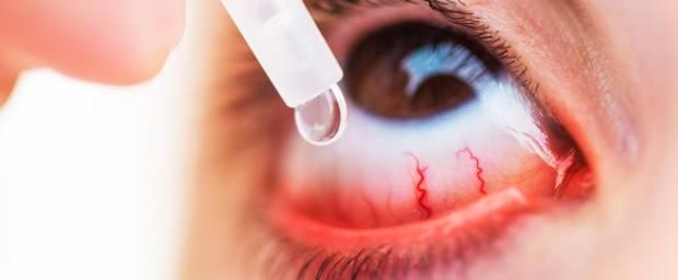 Frau macht sich Augentropfen in das entzündete Auge