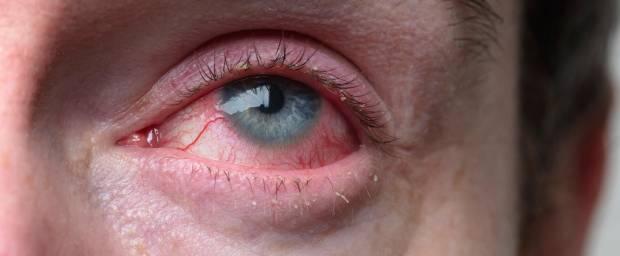 Mann mit rot gefärbten Augen und geschwollenen Augenlidern