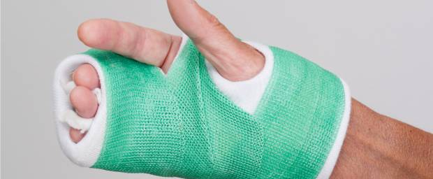 Knochenbrüche An Mittelhandknochen Und Fingerknochen Knochenbruch