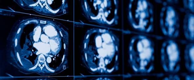 Computertomographie des Herzens