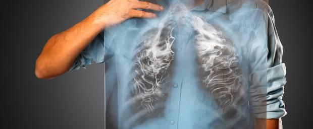 Chronisch-obstruktive Lungenerkrankung (COPD)