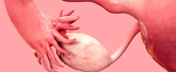 Eierstockkrebs, Eileiterkrebs