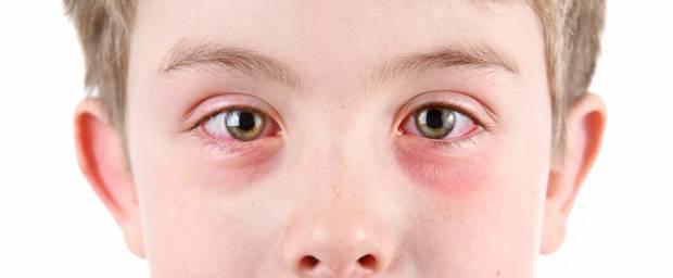 Junge mit Ekzem am Auge und roten Augen