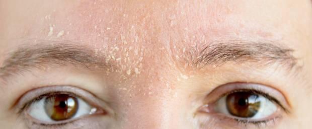 Frau mit Ekzem im Gesicht zwischen den Augenbrauen