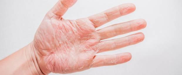 Ekzem an der Hand, in der Handinnenfläche