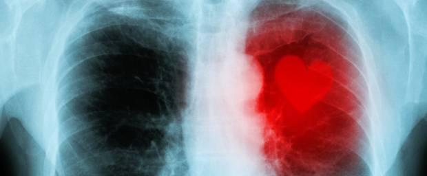 Röntgenbild von Herzerkrankung
