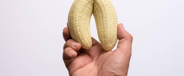 Fehlbildungen des Penis