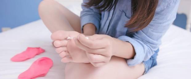 Frau behandelt Fußpilz mit dem Auftragen von Creme mit einem Wattestäbchen