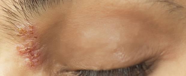 Frau mit Gürtelrose am Auge, im Gesicht