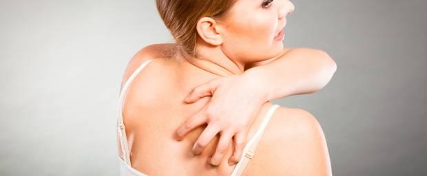 Gürtelrose (Herpes Zoster)