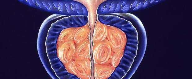 Gutartige Prostatavergrößerung, Prostatahyperplasie