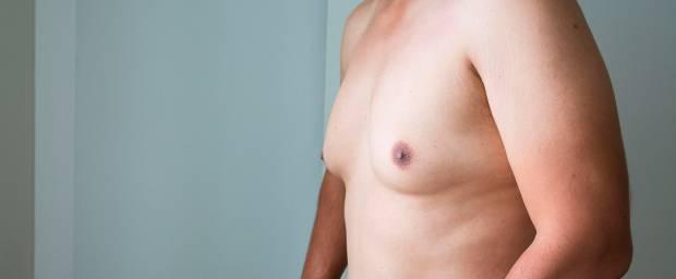 Vergrößerte Brüste beim Mann (Gynäkomastie)