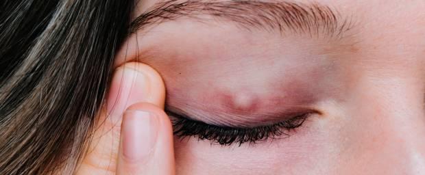 Hagelkorn am Auge