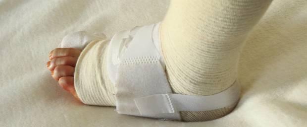 Fuß mit Bandage nach Hallux-valgus-Operation