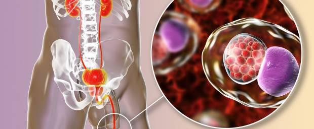 Harnröhrenentzündung (Urethritis)