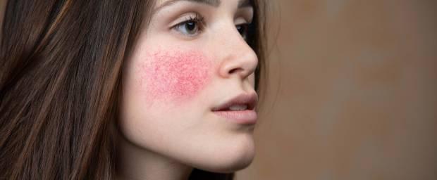 Junge Frau mit Hautrötung auf der Wange