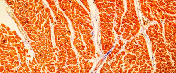 Herzmuskelentzündung, Myokarditis