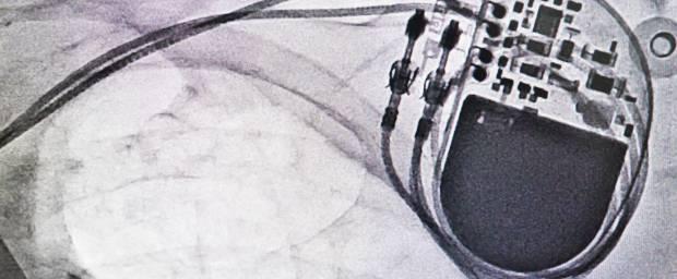 Röntgenbild mit einem Herzschrittmacher