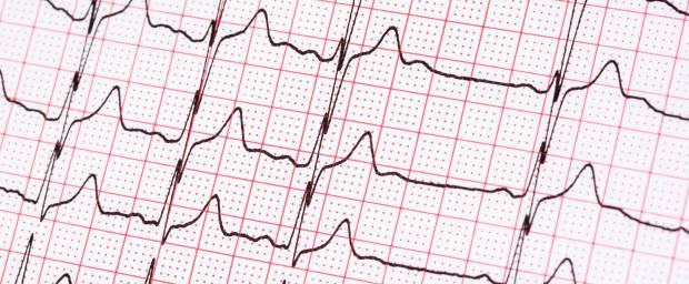 Herzstolpern, Extrasystolen