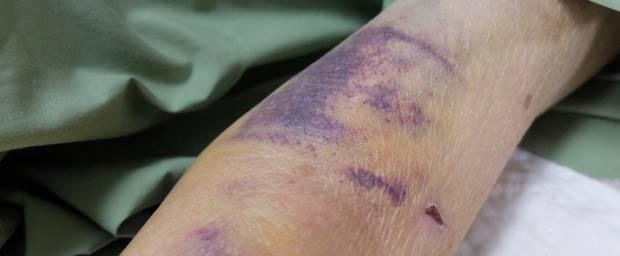 Druckstellen am Arm aufgrund einer Blutgerinnungsstörung