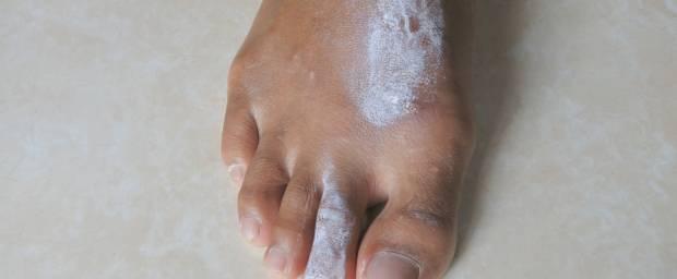 Fuß mit Krätze und Salbe drauf
