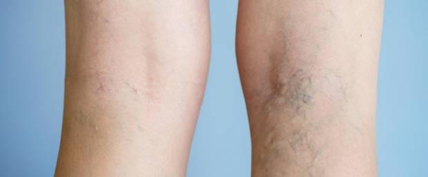 Frau mit Krampfadern am Bein