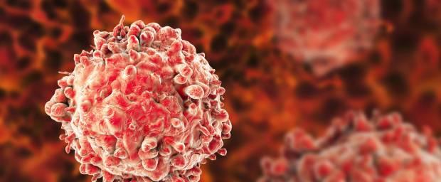 Leukämie, weiße Krebszellen