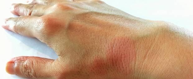 Lupus erythematodes an der Hand