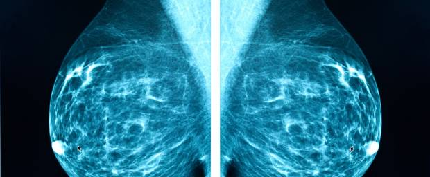 Mammadiagnostik