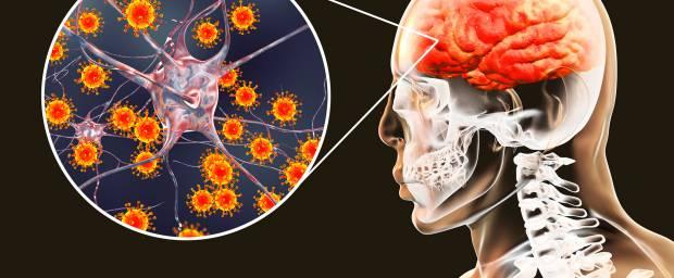 Was ist eine Meningoenzephalitis?