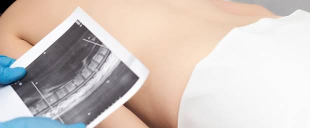 Rücken einer Frau und MRT-Aufnahme