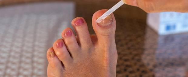Frau behandelt Ihren Nagelpilz mit Lack und trägt diesen mit einem Stäbchen auf