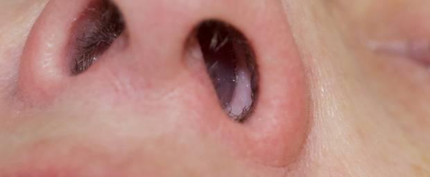 Nasenpolypen Symptome