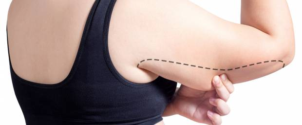 Frau zeigt Hautüberschuss am Oberarm