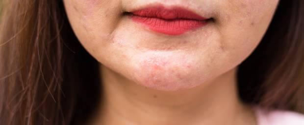 Asiatische Frau mit Ekzem im Gesicht