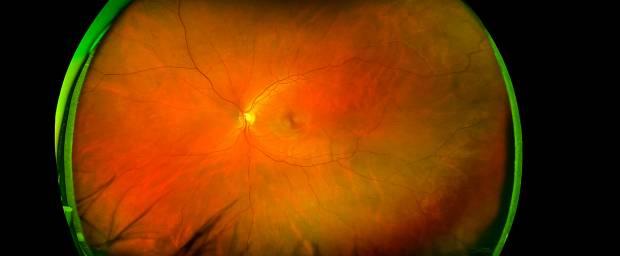 Photodynamische Therapie am Auge
